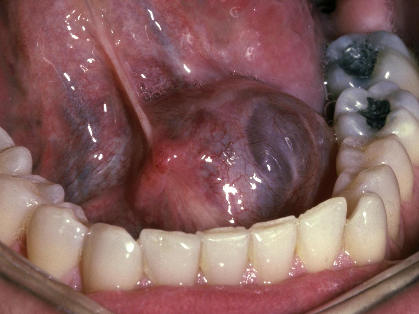 salivary gland emergencies